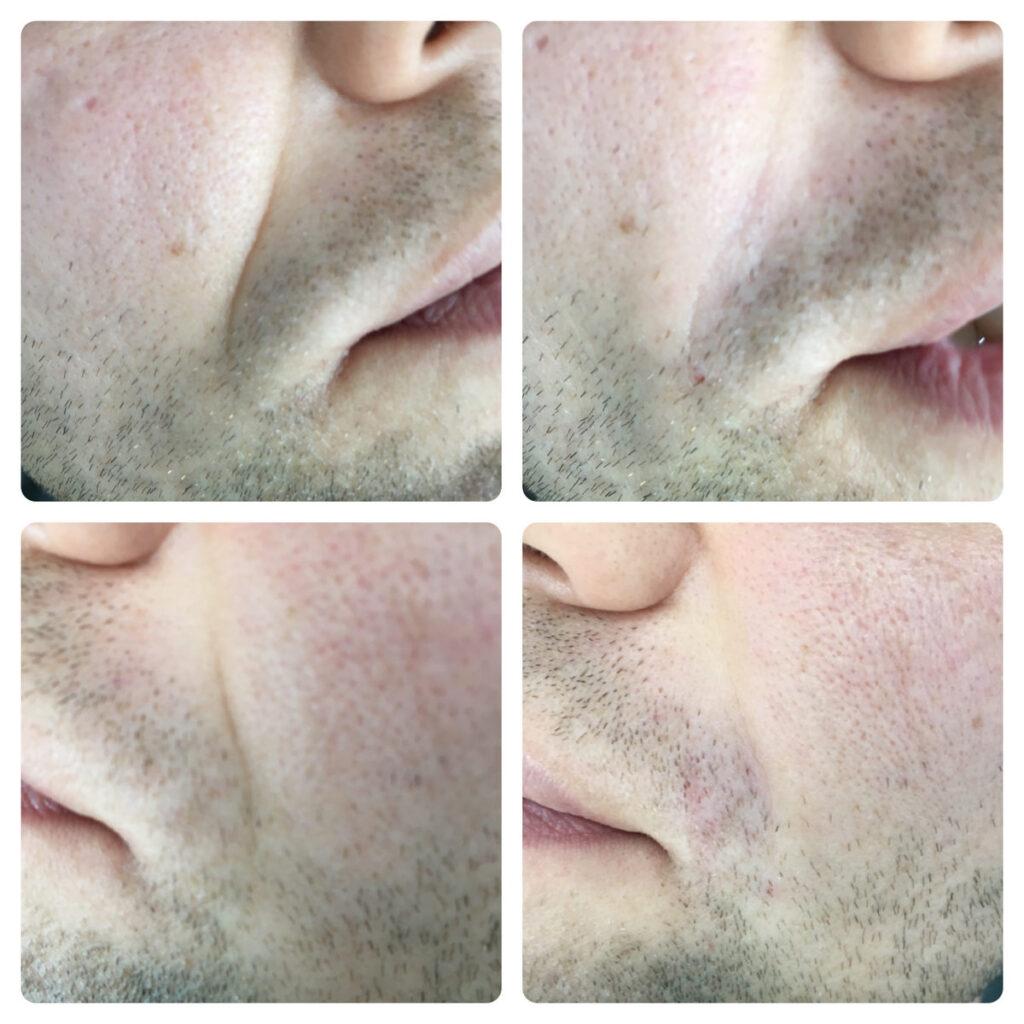 Носогубная складка - косметолог Ялта