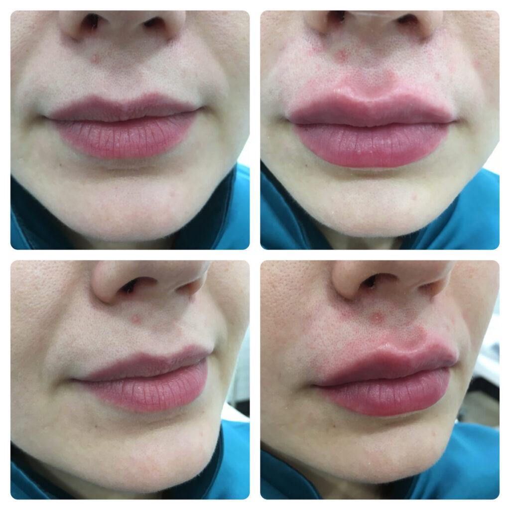результат до и после губы - косметолог Ялта