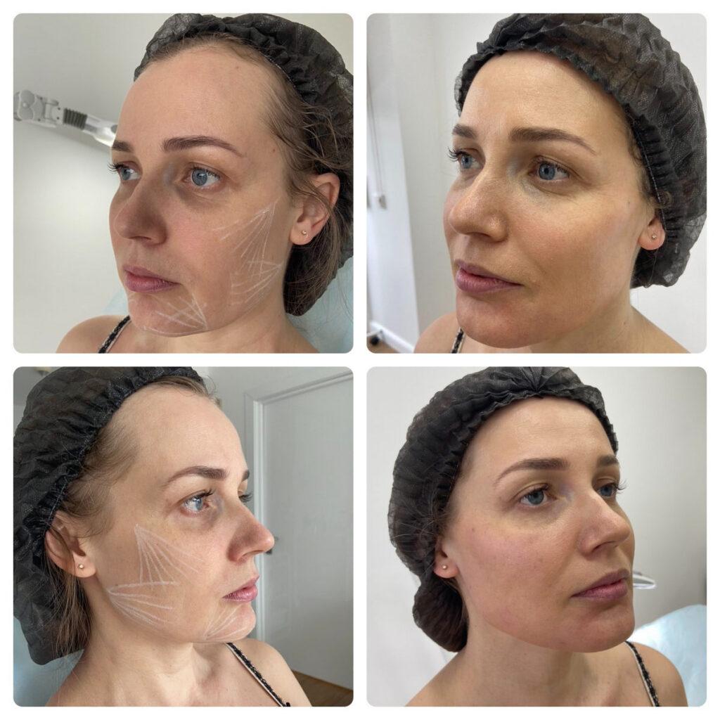 Результат до и после инъекций в Ялте