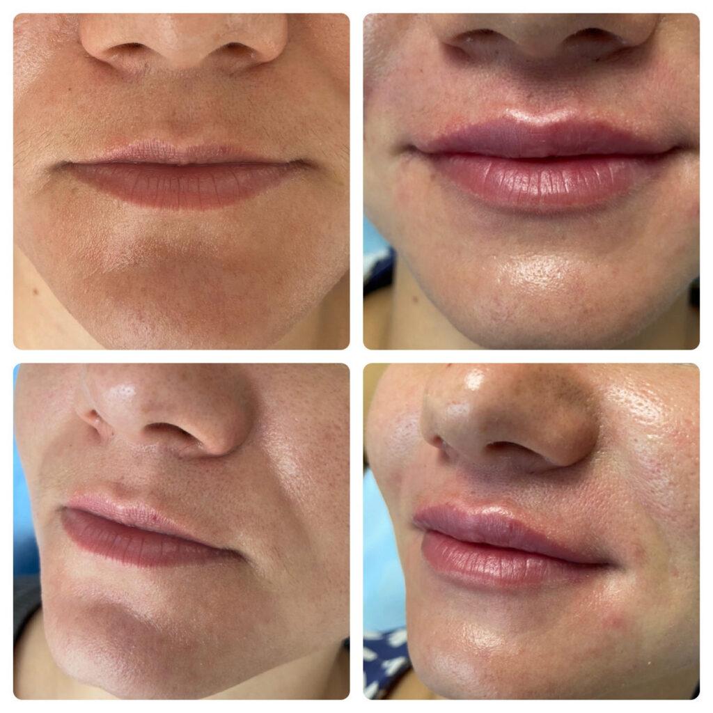 губы пример работы косметолога в Ялте