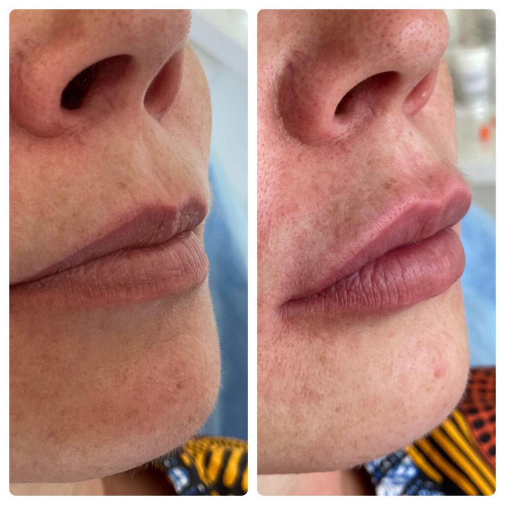 Косметолог Ялта - увеличение губ